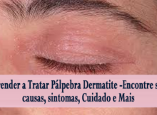 Aprender a Tratar Pálpebra Dermatite