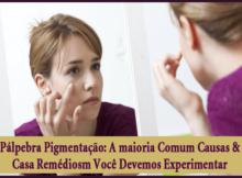 Palpebra Pigmentacao - A maioria Comum Causas & Casa Remediosm Você Devemos Experimentar