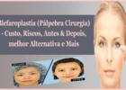 Blefaroplastia Pálpebra Cirurgia