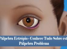 Pálpebra Ectrópio - Conhece Tudo Sobre este Pálpebra Problema