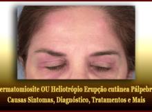 Dermatomiosite OU Heliotrópio Erupção cutânea Pálpebra - Causas Sintomas, Diagnóstico, Tratamentos e Mais