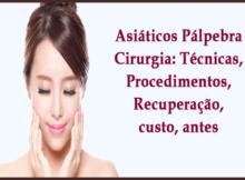 Asiáticos Pálpebra Cirurgia- Técnicas, Procedimentos, Recuperação, custo, antes