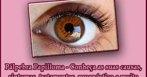 Pálpebra Papilloma - Conheça as suas causas, sintomas, tratamentos, prognóstico e muito mais