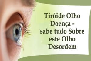 Tiróide Olho Doença - sabe tudo Sobre este Olho Desordem