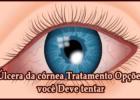 Úlcera da córnea Tratamento Opções você Deve tentar