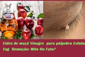 Cidra de maçã Vinagre para pálpebra Esfolar Tag Remoção: Mito Ou Fato?